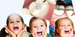 1186 зъбки на 351 деца бяха силанизирани за близо 3 месеца � ...